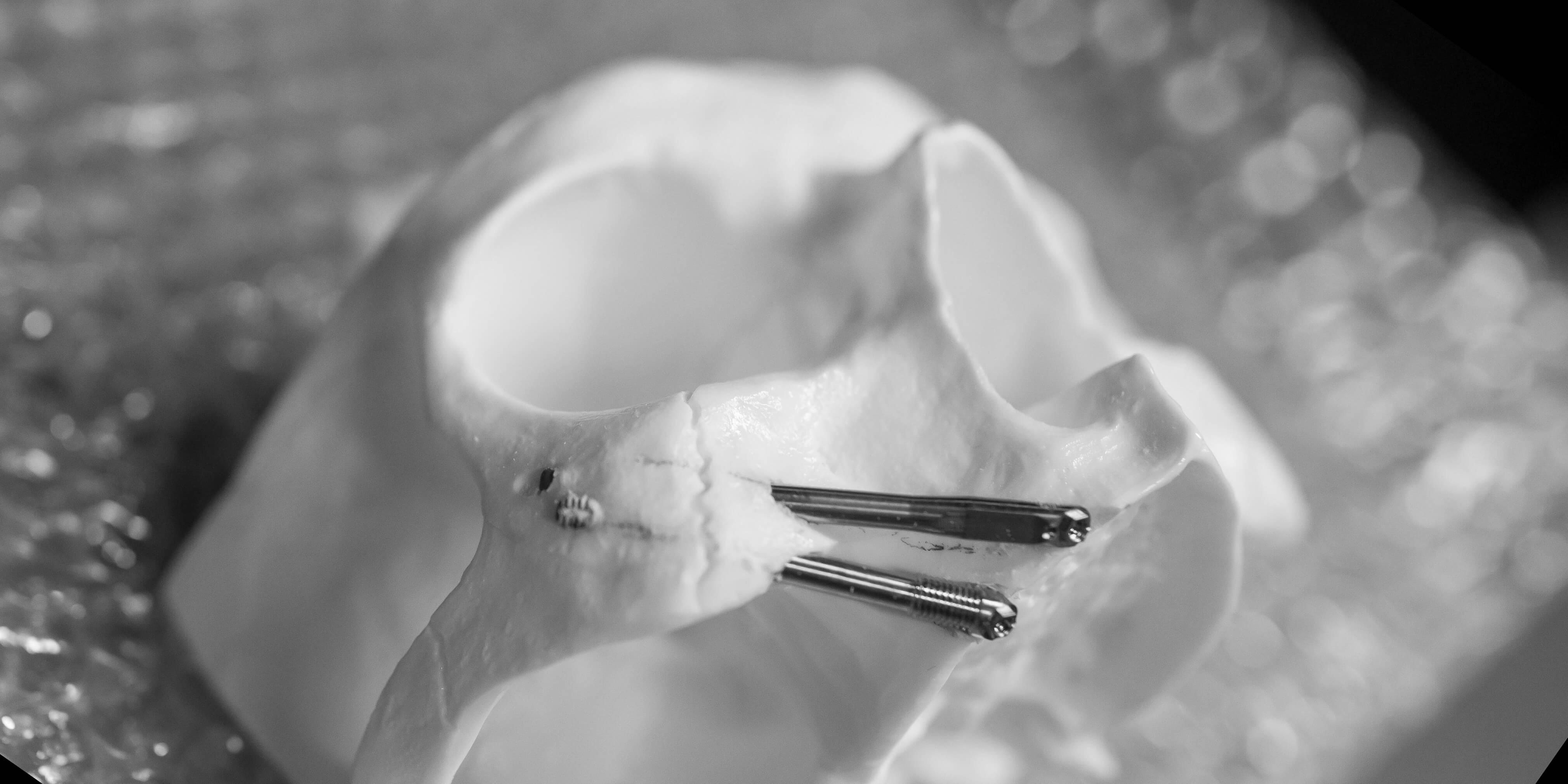 Implante cigomatico